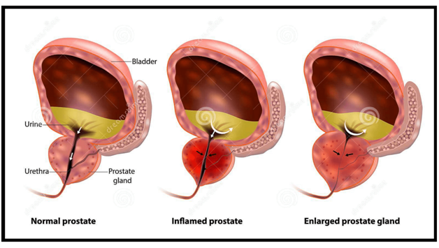 PX7 Primal Flow - Normal, Enlarged and Inflamed Prostate
