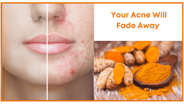 Turmeric Natural Health Benefits - Your acne will fade away