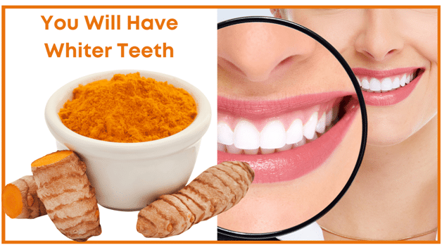 Turmeric Natural Health Benefits - You will have whiter teeth